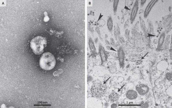 Новый китайский вирус предположительно произошел от летучей мыши