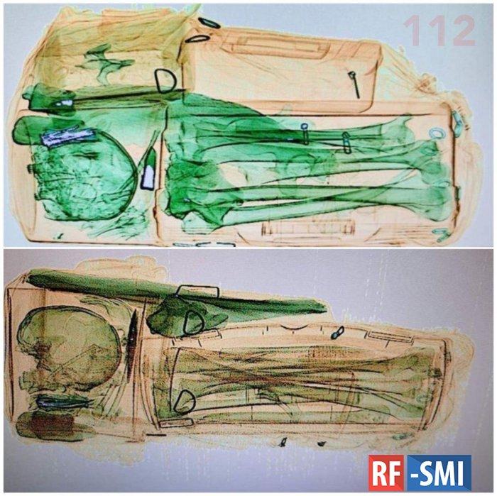 На вокзале Красноярска задержан мужчина с полной сумкой человеческих костей