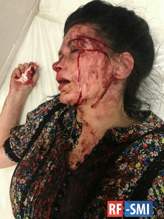 В Днепре избили известную активистку Наталью Эшонкулову